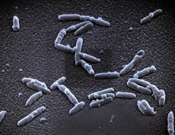 Legionella pneumophila je parazit, který vniká do lidských buněk a způsobuje tzv. legionářskou nemoc. Ta má podobný průběh jako zápal plic. Pro lidi s oslabenou imunitou představuje životu nebezpečné onemocnění. (Foto: Viega)